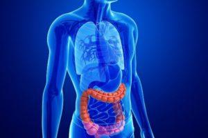 Rak to nie mutacja jednego genu – wieloetapowy model rozwoju nowotworu